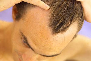 Cure-for-hair-loss-man-hair-loss